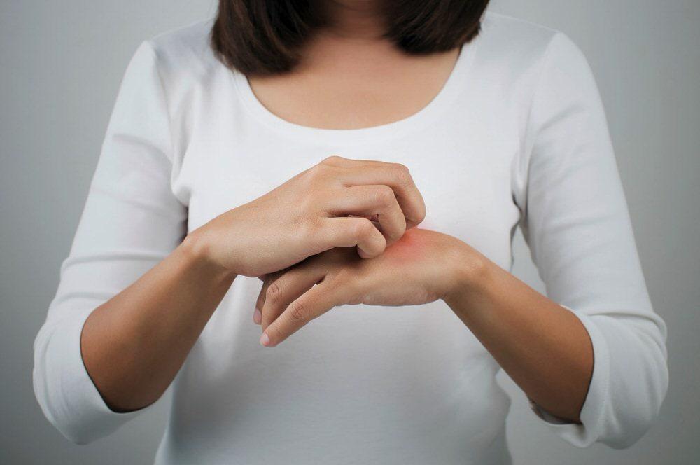 Dermatitis atópica en manos