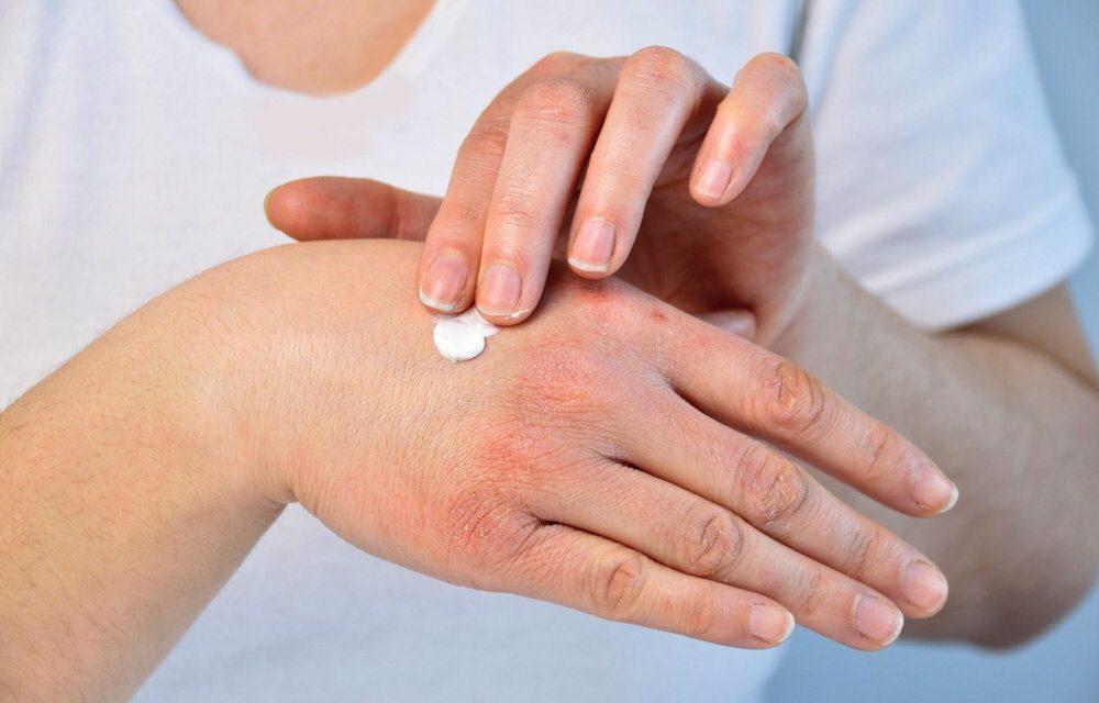Los tratamientos más eficaces para la dermatitis atópica