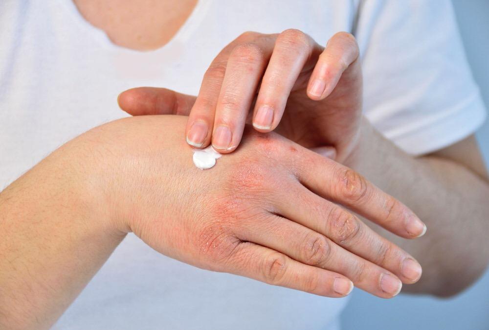 Tratamiento de la dermatitis atópica