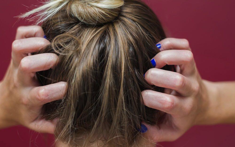 Cómo tratar la dermatitis atópica en el cuero cabelludo