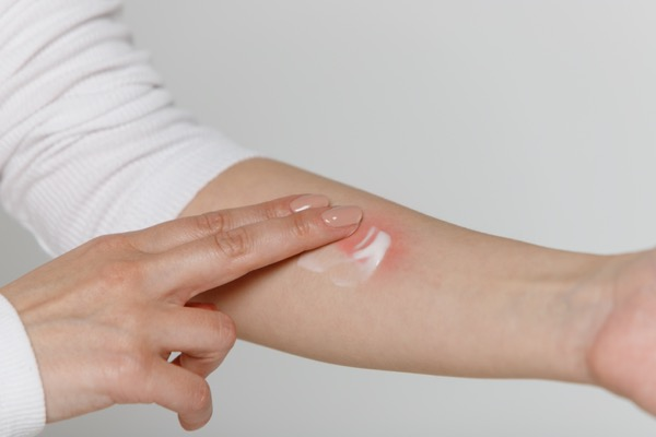 crema piel atopica