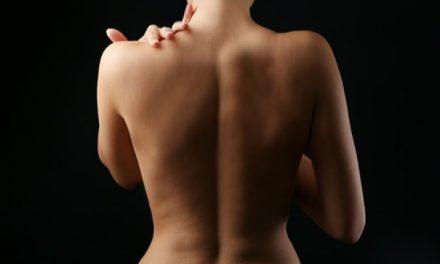 Estrías en la espalda: cómo se forman y tratamiento